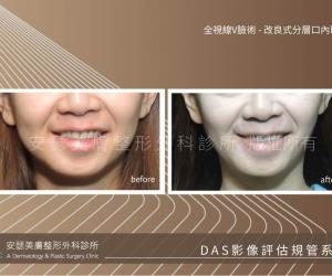 改良式分層口內取脂案例-06