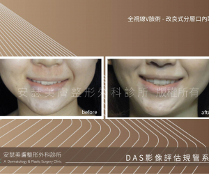 改良式分層口內取脂案例-02